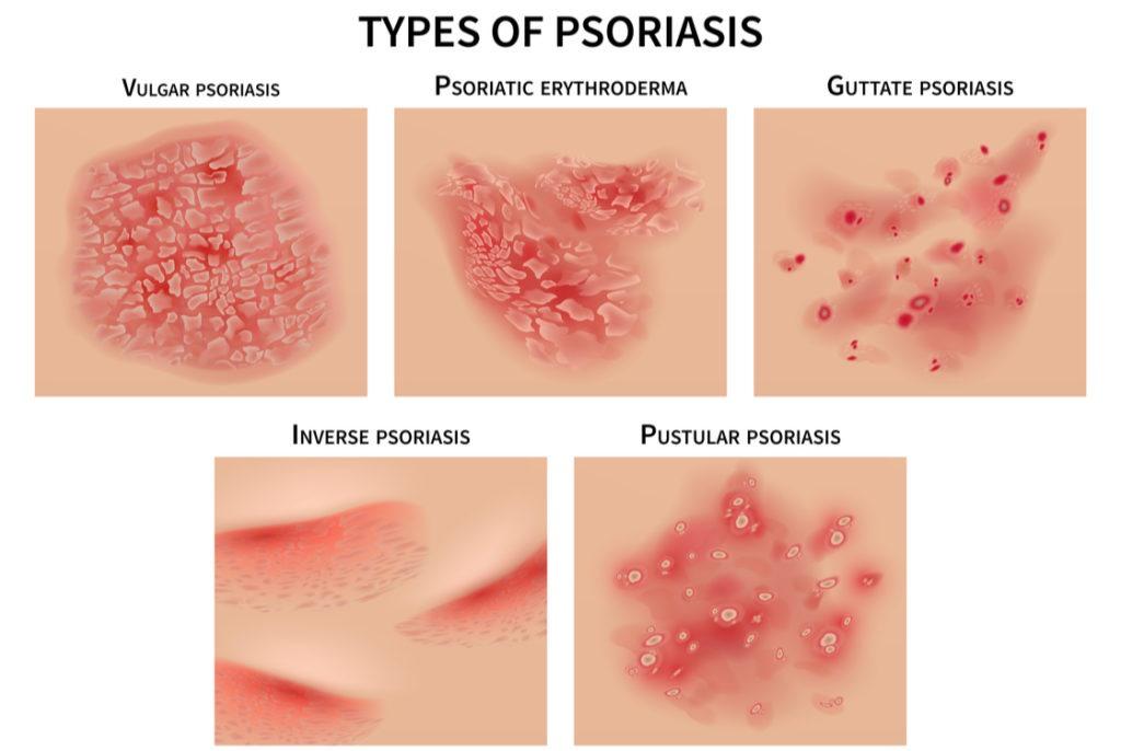 Die verschiedenen Arten von Psoriasis.