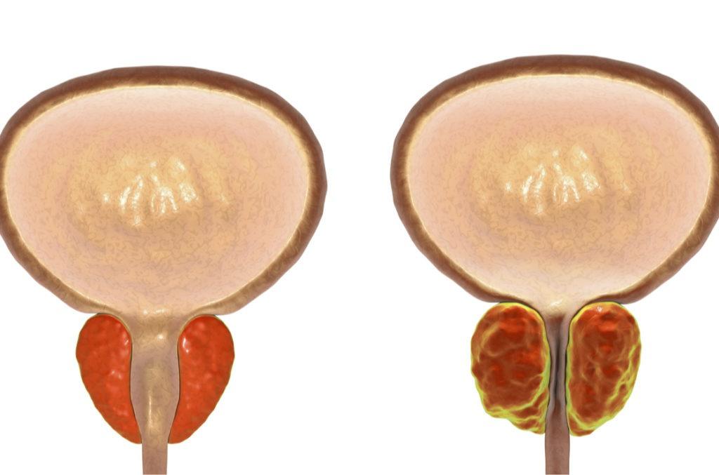 Vergrößerte Prostata (re.) beengt die Harnröhre. Besonders ein Symptom bei Männern in Wechseljahren.