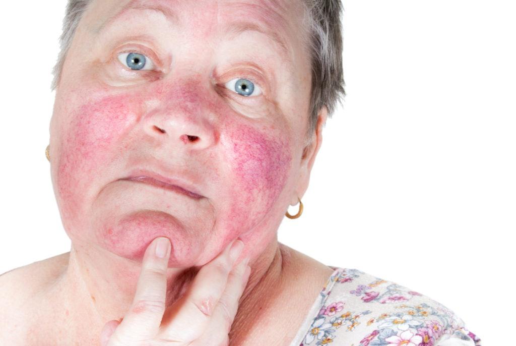So sieht Rosacea im Gesicht aus. Lesen Sie, welche Behandlungsmöglichkeiten es gibt.
