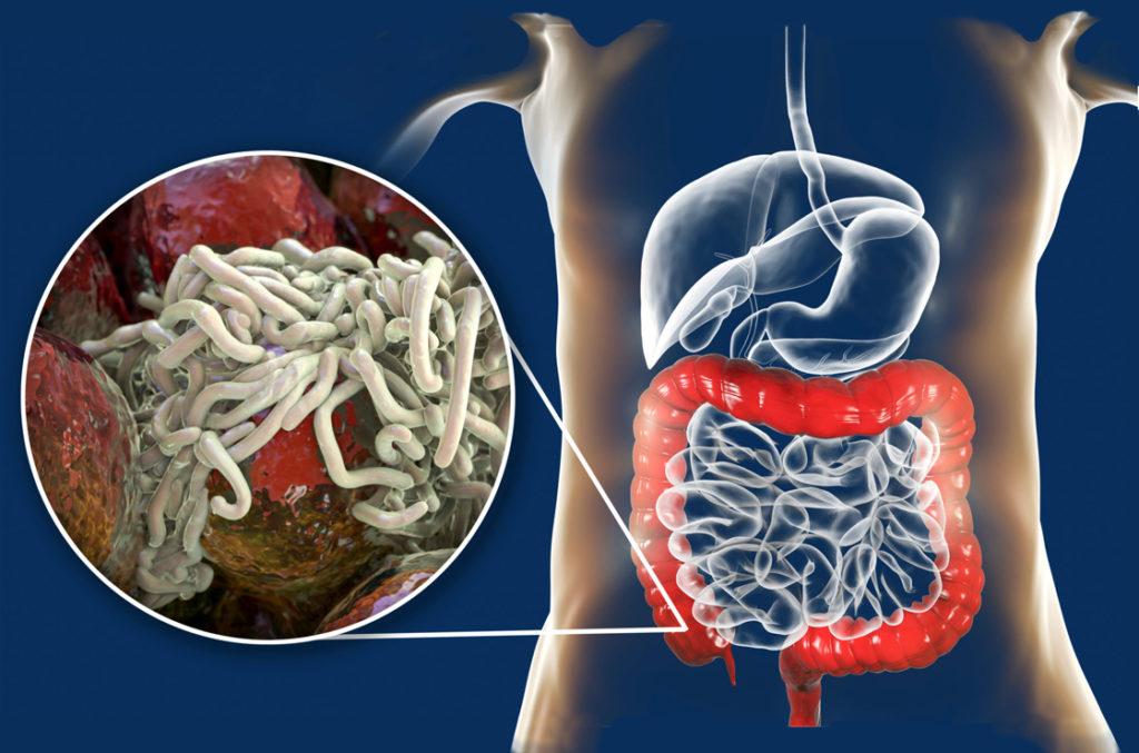 Spiralwürmer im Darm.
