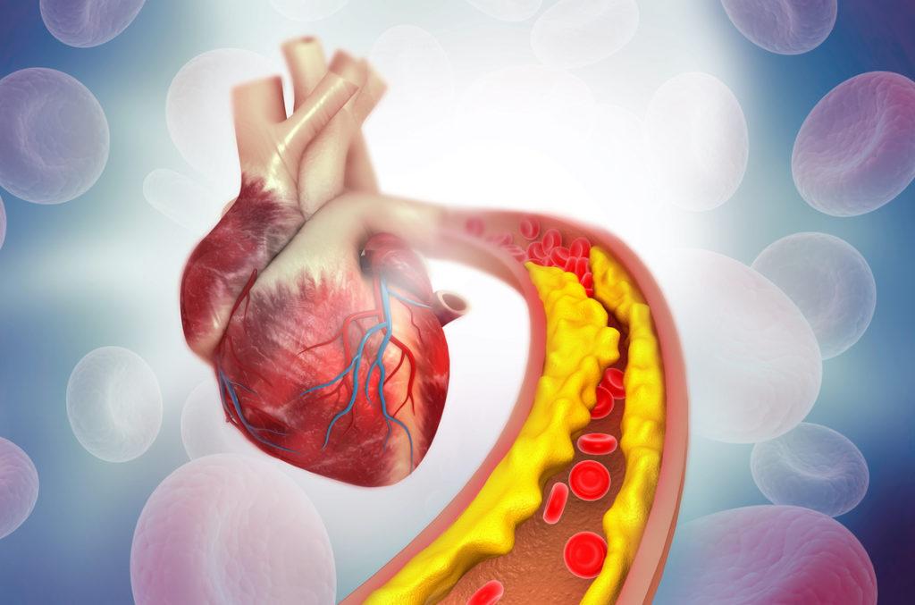 Risikofaktoren für eine Arteriosklerose