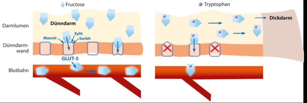 Fructose-Malabsorption im Dünndarm